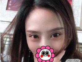 深圳博美王红玮全切双眼皮提肌开内眼角案例