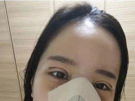 切开双眼皮+眼肌矫正+鼻部修复手术后记