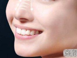 专家告诉你选择最好的隆鼻医院要看准两点要素!