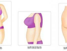 沈阳医生自体脂肪全脸填充案例分