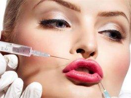 玻尿酸填充鼻唇沟多少钱 玻尿酸填充鼻唇沟价格
