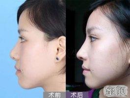 花18000在南京美贝尔做硅胶假体+自体耳软骨鼻综合术后效果值了