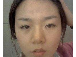 【隆鼻+面部脂肪移植】对比照 年轻十岁不是梦