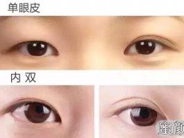 双眼皮疤痕篇——全切双眼皮术后疤痕问题详解
