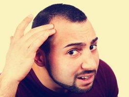 天津做头发种植费用是多少 毛发种植有哪些技术