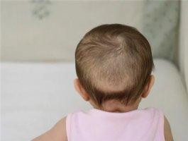 孩子脱发有哪些原因