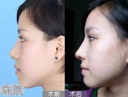 广东药科大学附属第一医院徐媛半肋鼻综合案例