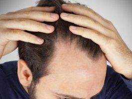 头发种植前需要注意什么 头发种植效果怎样算好