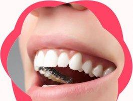 要不要做牙齿矫正?看完这篇文章您就知道!