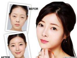 「案例分享」双眼皮修复体验归来