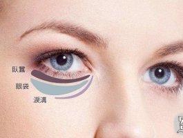 专家带你快速了解卧蚕和眼袋的区别!