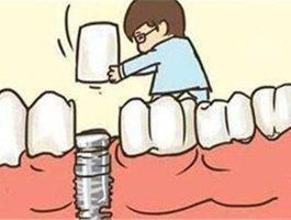种植牙有什么风险 种植牙的风险大吗