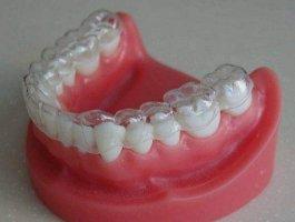 牙瓷贴片的效果怎么样