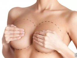 自体脂肪隆胸部让你拥有饱满人生!
