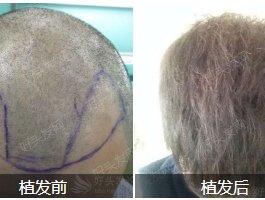 怎么选择靠谱的植发医院?