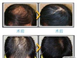 关于人工头发种植,你需要知道的事情!