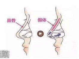 太原军大整形王海龙做的膨体隆鼻和自体耳软骨垫鼻尖鼻综合案例