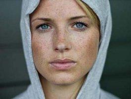 晒斑去除的重要性是啥 去除晒斑的八个天然有效方法