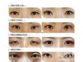 做双眼皮手术,术前准备工作有哪些呢?