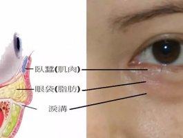 西京医院整形科用玻尿酸丰泪沟能保持多久?