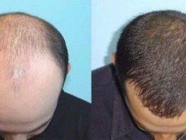 植发医生解答植发后大面积脱落怎么办?