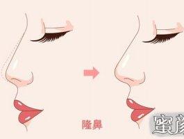 双美胶原蛋白隆鼻帮你摆脱蒜头鼻!