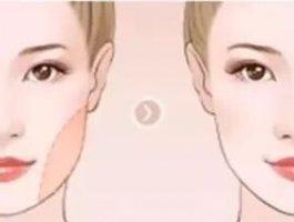 面部吸脂:比起天生脸大,发腮更加可怕!