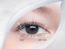 医美项目 | 切开双眼皮和埋线双眼皮,怎么选?