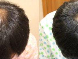 植发后如何更好地恢复?