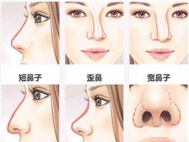 鼻综合都有哪些术式?一篇带你了解!