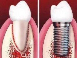 60岁以上还能做种植牙吗?种植牙的利与弊
