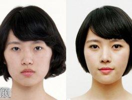 「案例」韩式双眼皮+开眼角,让她颜值爆表!