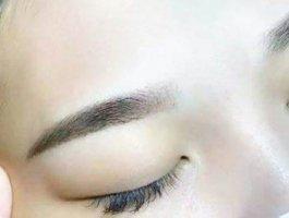 眉毛种植过程是怎样的,术后如何护理?