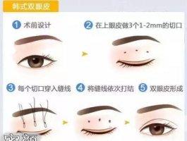 关于韩式定点双眼皮,你需要知道的眼睛放大魔法!