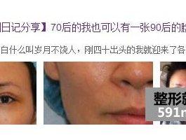 面部自体脂肪移植 70后的我也可以有一张90后的脸