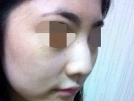 北京伊美尔健翔医院驼峰鼻矫正要多少钱 案例图