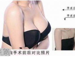 隆乳整形之前进行测量能让手术方案更完美!