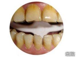 为了美白四环素牙在武汉康承贝健口腔做了12颗铸瓷贴面,终于可以美美的露牙拍照了