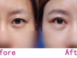 上眼皮吸脂手术让你拥有魅力电眼!