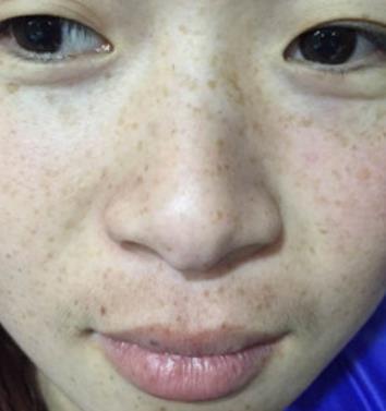 武汉协和医院美容科去黄褐斑案例图展示&三个月恢复效果 知识库 第1张
