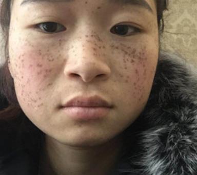 武汉协和医院美容科去黄褐斑案例图展示&三个月恢复效果 知识库 第2张