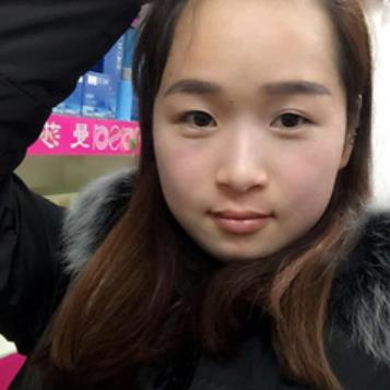 武汉协和医院美容科去黄褐斑案例图展示&三个月恢复效果 知识库 第4张