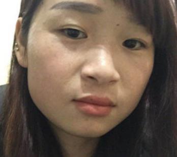 武汉协和医院美容科去黄褐斑案例图展示&三个月恢复效果 知识库 第3张