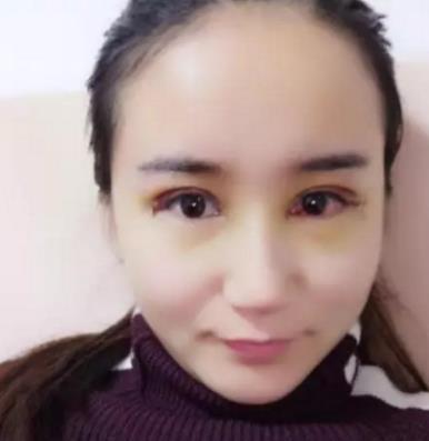协和医院双眼皮谁做得好?黄久佐医生案例在线查询 知识库 第3张