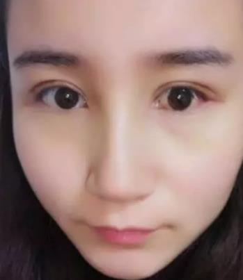 协和医院双眼皮谁做得好?黄久佐医生案例在线查询 知识库 第4张