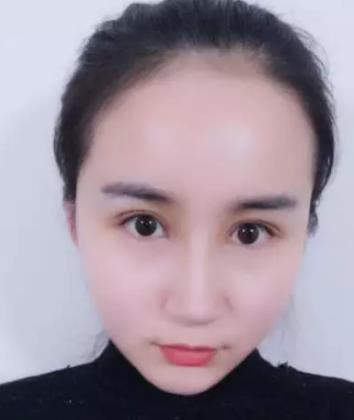 协和医院双眼皮谁做得好?黄久佐医生案例在线查询 知识库 第6张