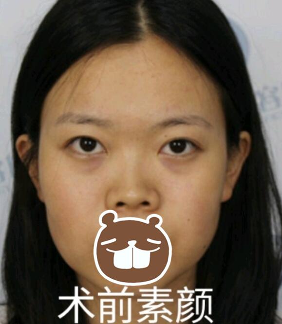 【案例】薛提朋做鼻子怎么样?看看她的隆鼻反馈吧 知识库 第1张