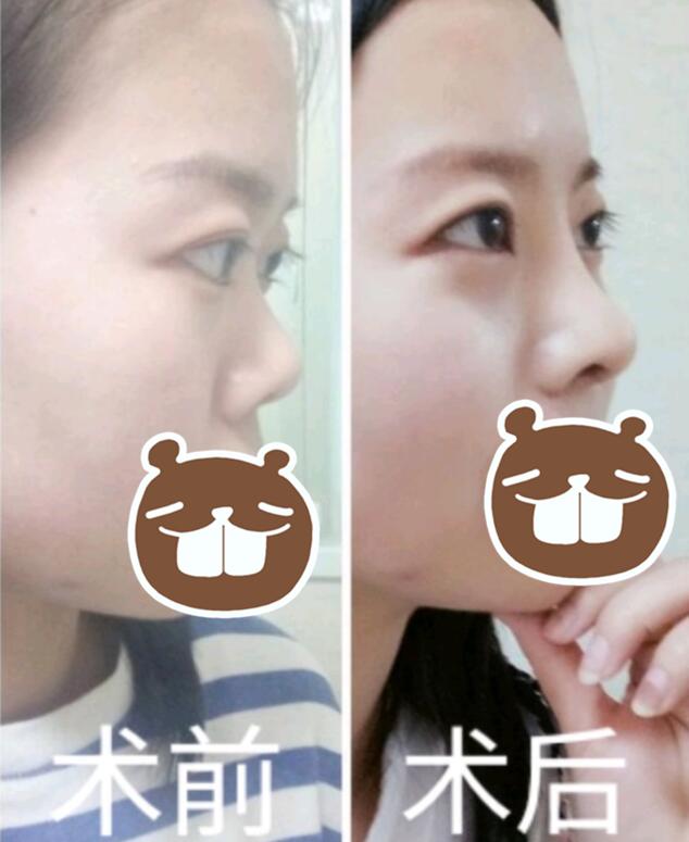 【案例】薛提朋做鼻子怎么样?看看她的隆鼻反馈吧 知识库 第2张