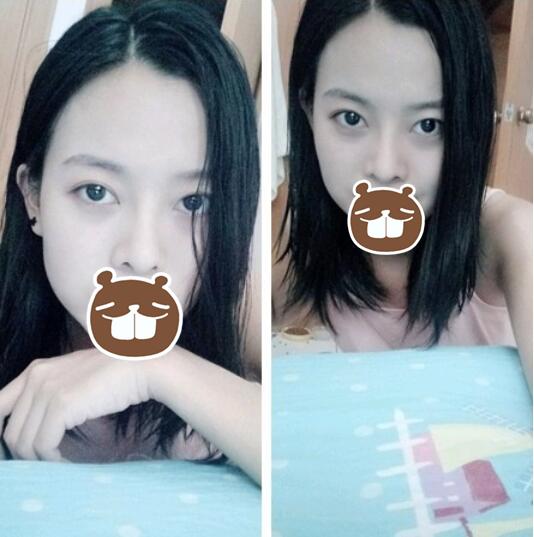 【案例】薛提朋做鼻子怎么样?看看她的隆鼻反馈吧 知识库 第3张