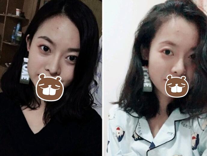 【案例】薛提朋做鼻子怎么样?看看她的隆鼻反馈吧 知识库 第4张
